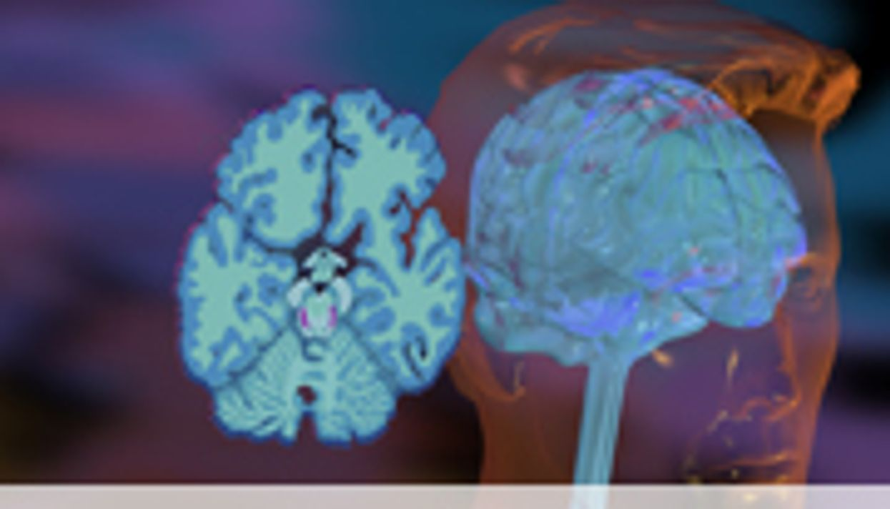 Exercise, Drugs Compared for Depression Tx in CHD Patients