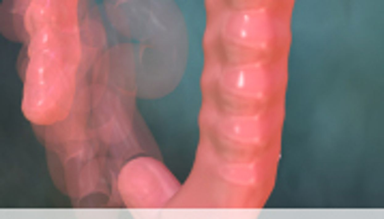 Female Smokers More Susceptible to Colon Cancer