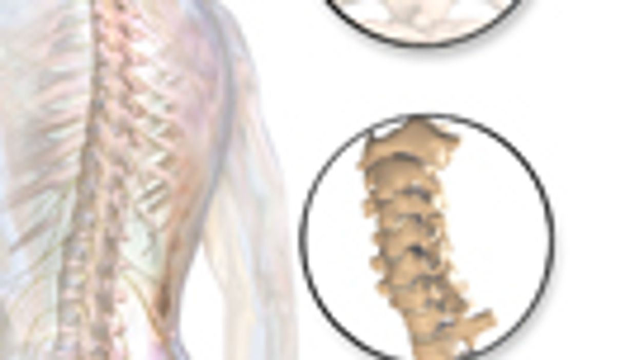 Neck Strength, Cervical Spine Mobility Don't Predict Pain