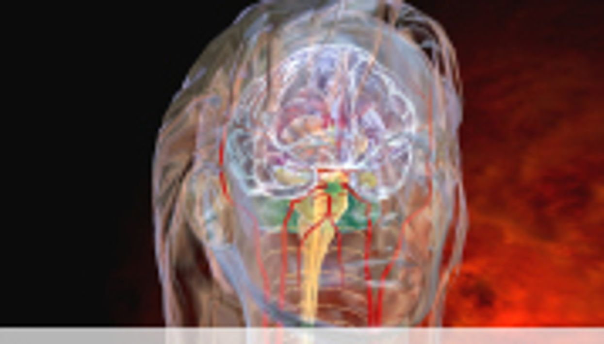 Peripheral Nerve Blocks OK for Migraines in Pregnancy