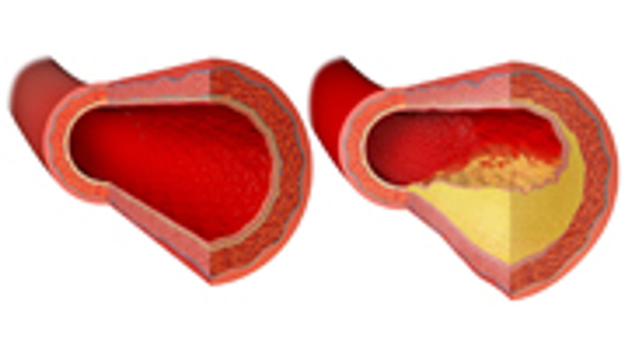 Most Treatments for Blood Clots Appear Safe, Effective