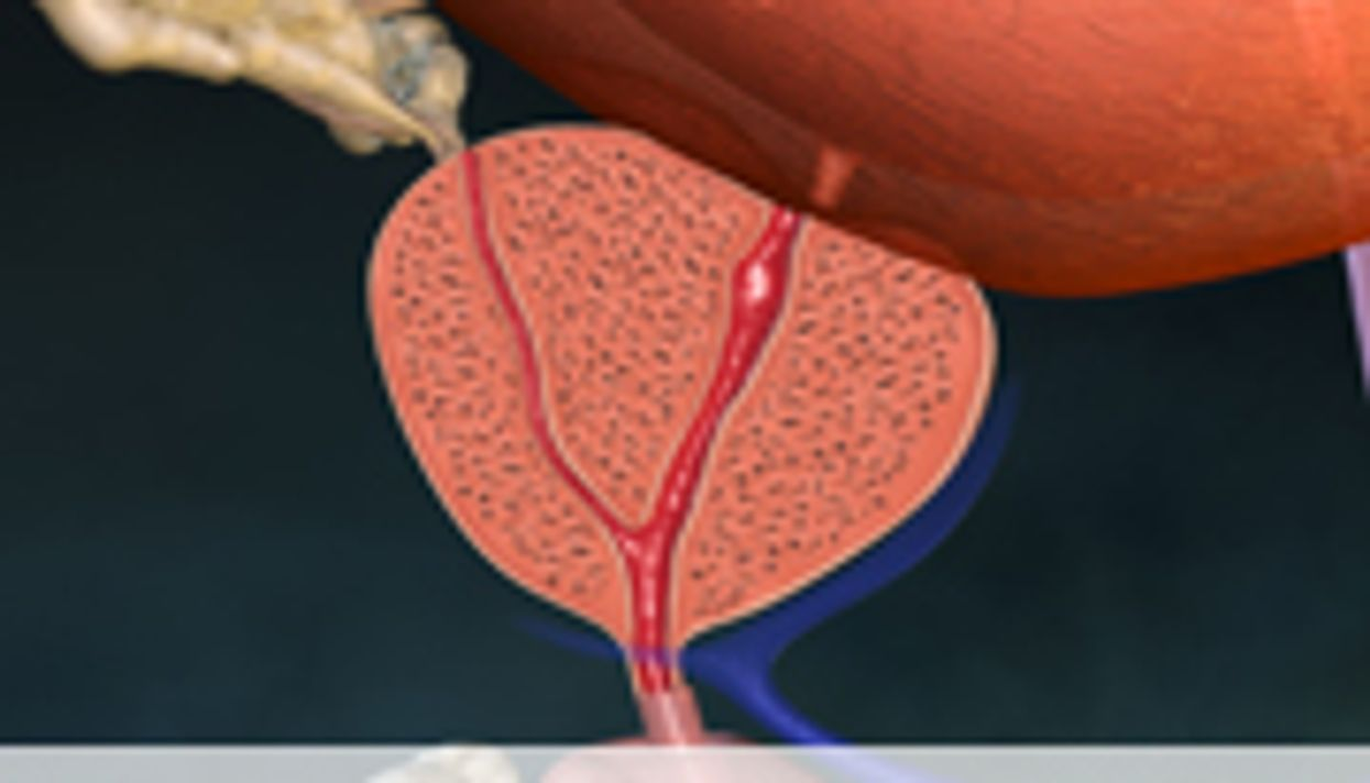 MRI-Targeted Prostate Biopsy May Yield Better Results