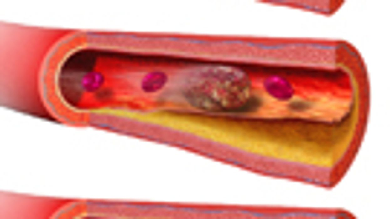 Wound Infections From Colon Surgery May Raise Risk for Blood Clots
