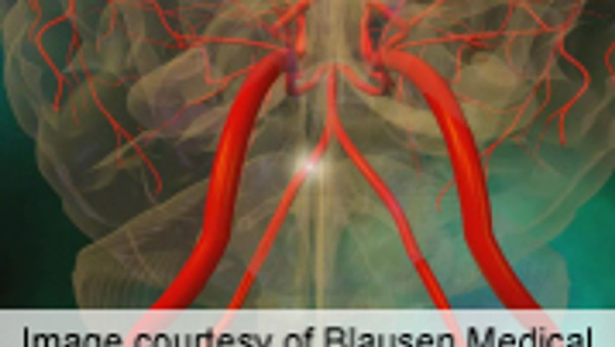 Benefits of Faster Thrombolysis Time Quantified