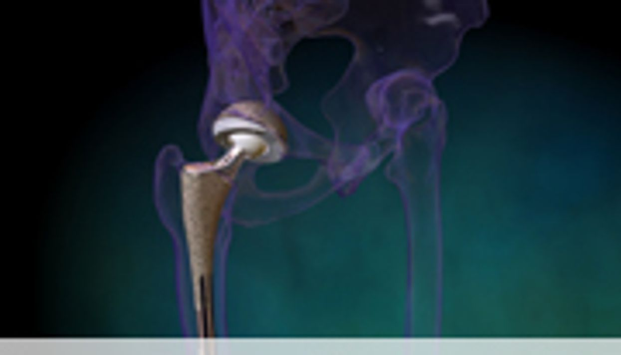 Increased Risk of Heart Attack After Hip, Knee Replacement