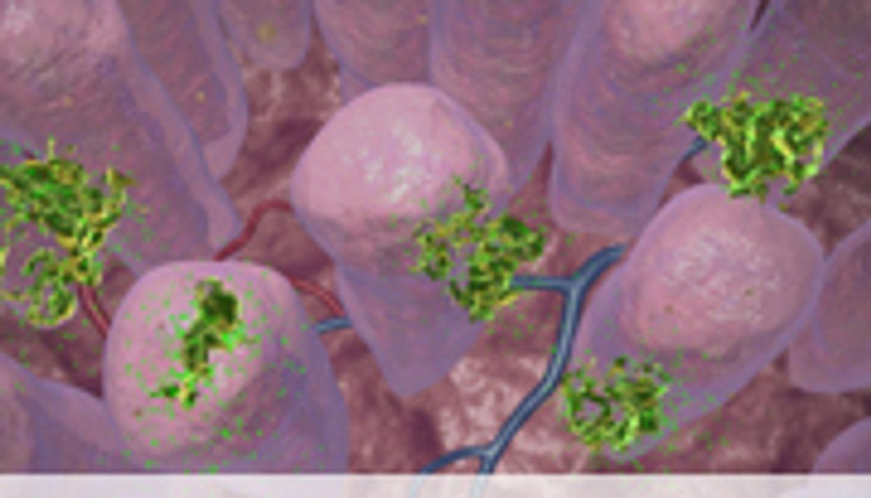 ASCO: Vitamin D Tied to Colon Cancer Progression, Survival