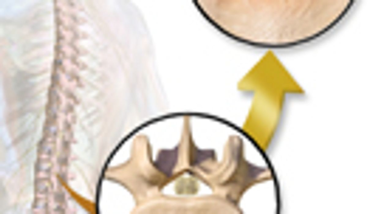 Study Compares Surgical Procedures for Spinal Stenosis