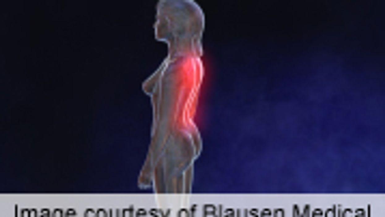 Brain Stimulation Improves QoL in Fibromyalgia Patients