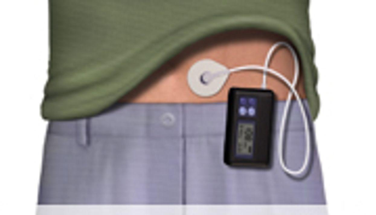 EASD: Insulin Pumps Reduce Mortality, Fatal CVD Risk