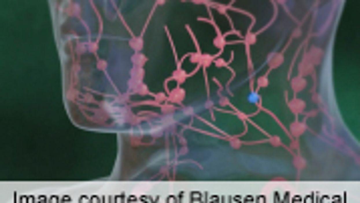 SLNB Doesn't Up Survival in Melanoma Arising in Head, Neck