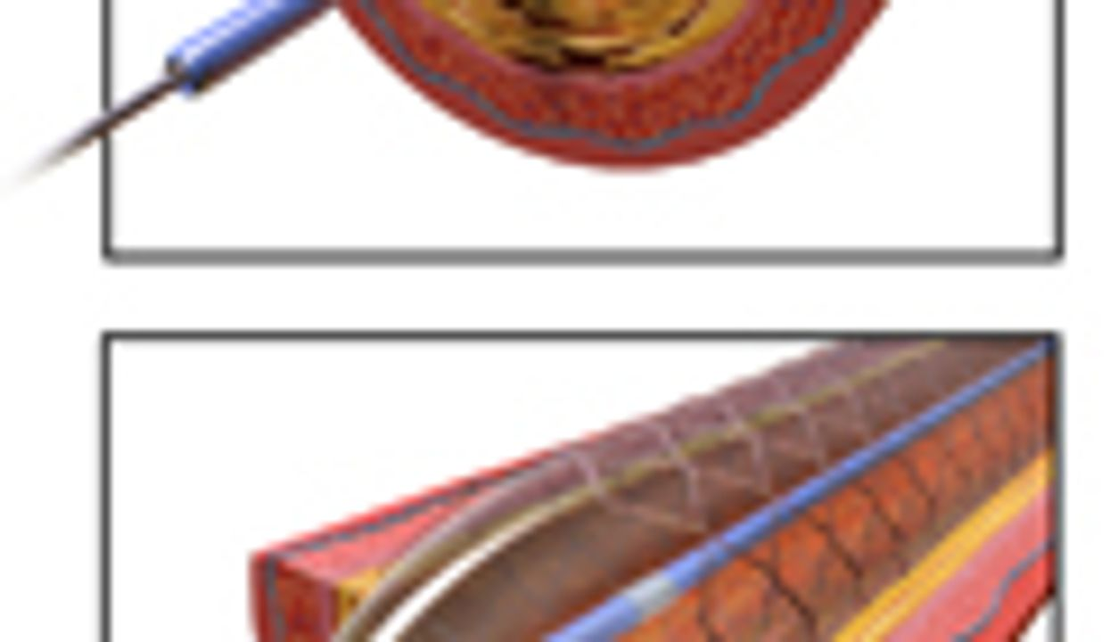 Expensive, Drug-Emitting Stents May Be Overused: Study