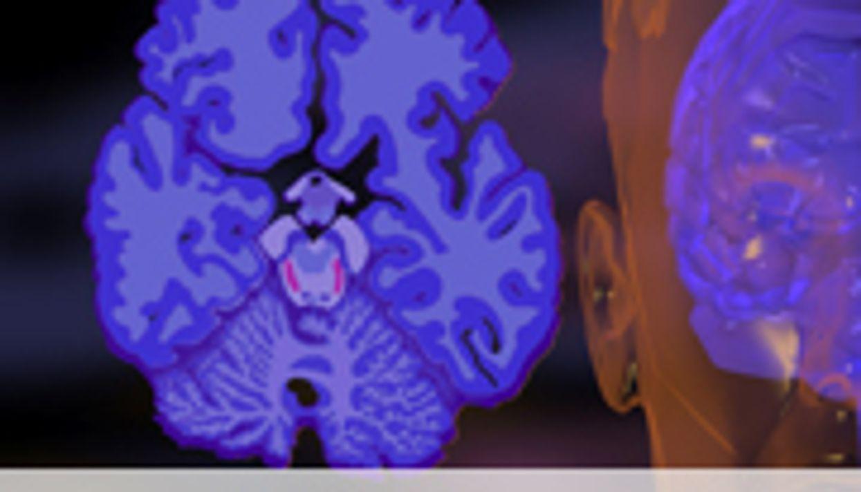 Elderly African-Americans May Have Higher Alzheimer's Burden