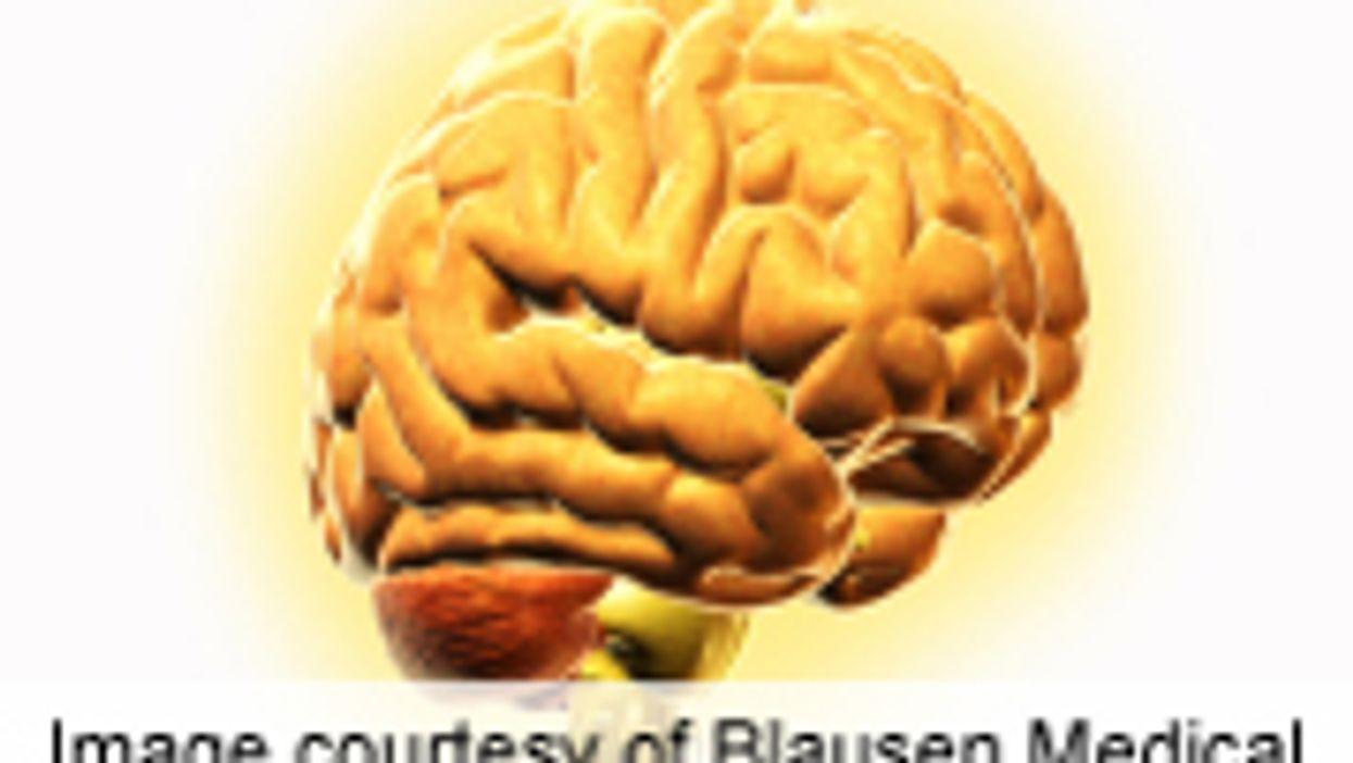 Timeline Detected for Rare, Early Alzheimer's