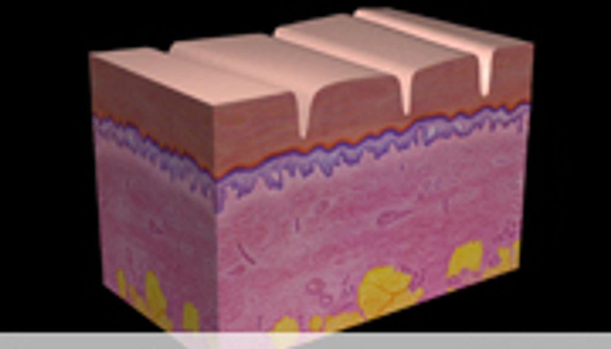 Fractional, Ablative Er:YAG Laser Akin for Skin Resurfacing