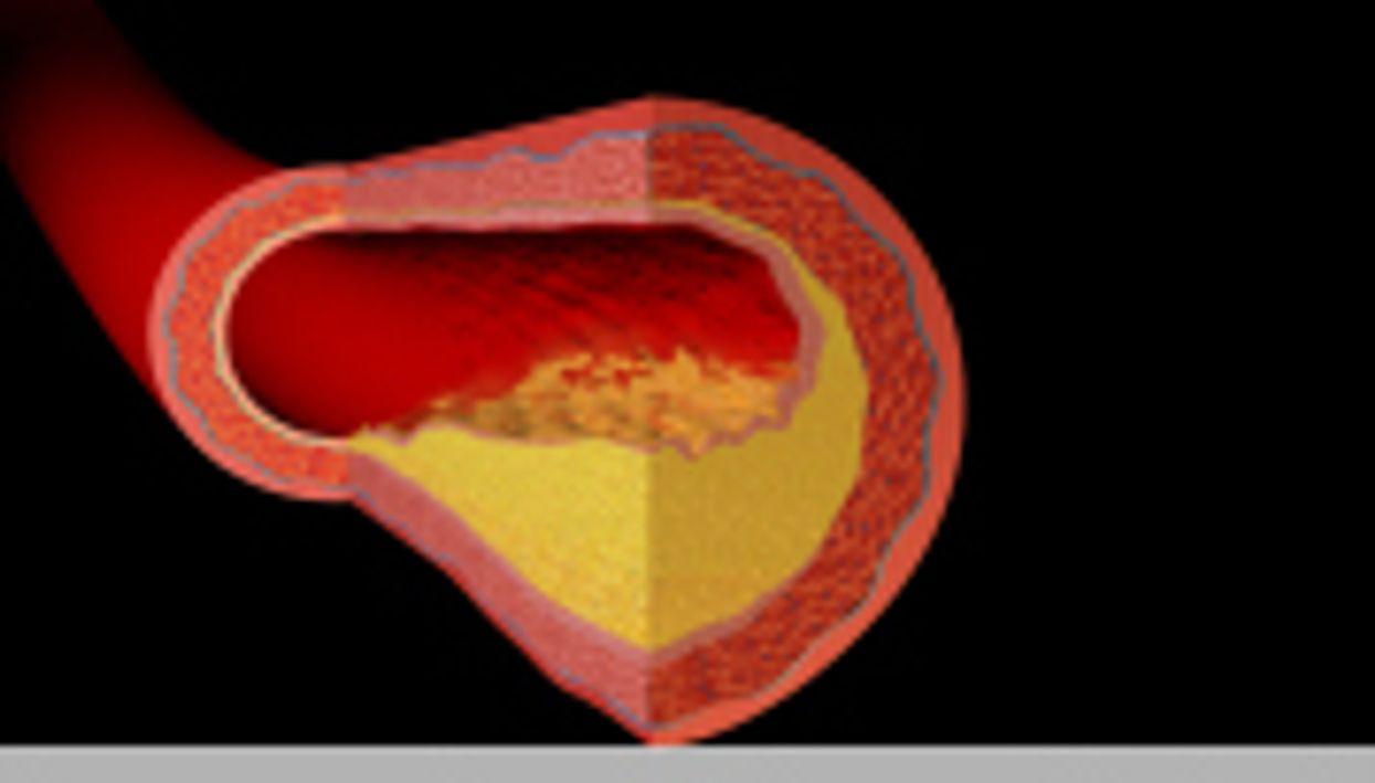 Sclerostin Linked to Vascular Disease in Type 2 Diabetes