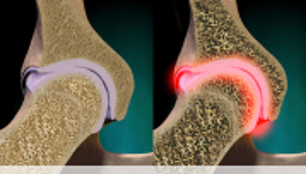 Post-Fracture Targeting Boosts Osteoporosis Management