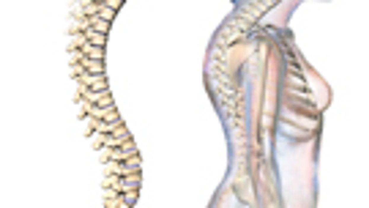 Kyphoplasty Superior to Vertebroplasty for Vertebral Fx