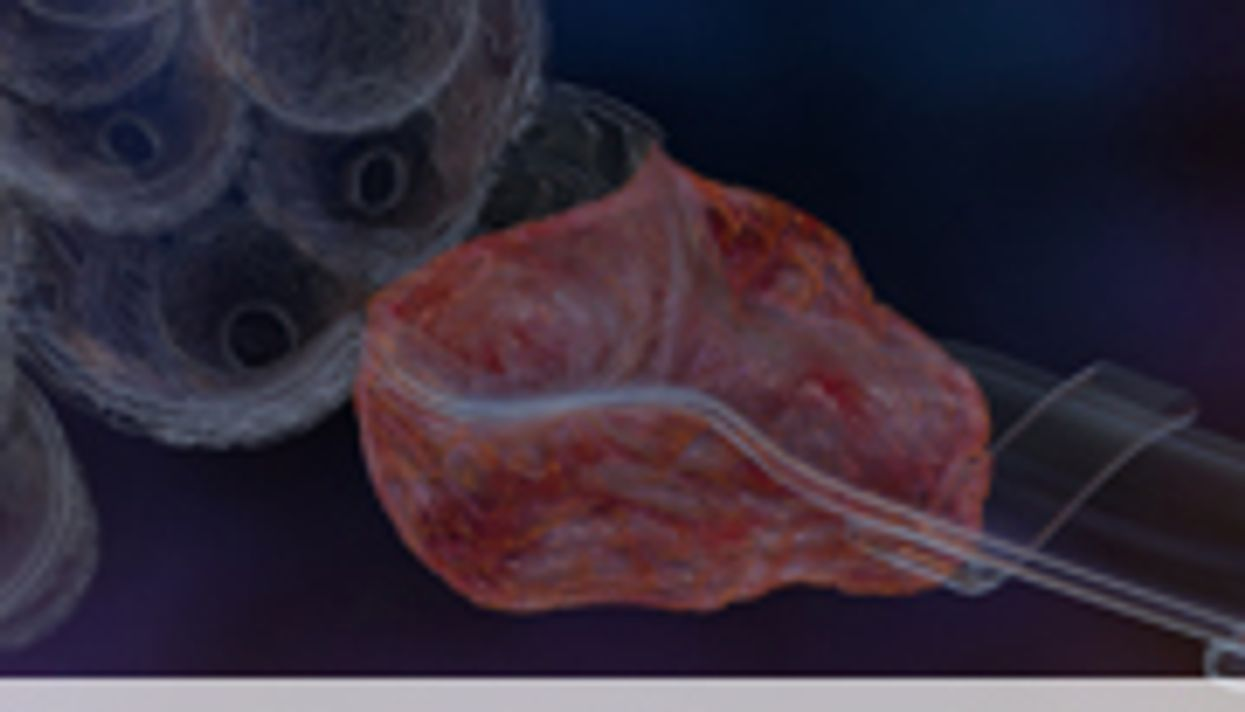 New Treatment Available for Repeated Occlusion of Arteries