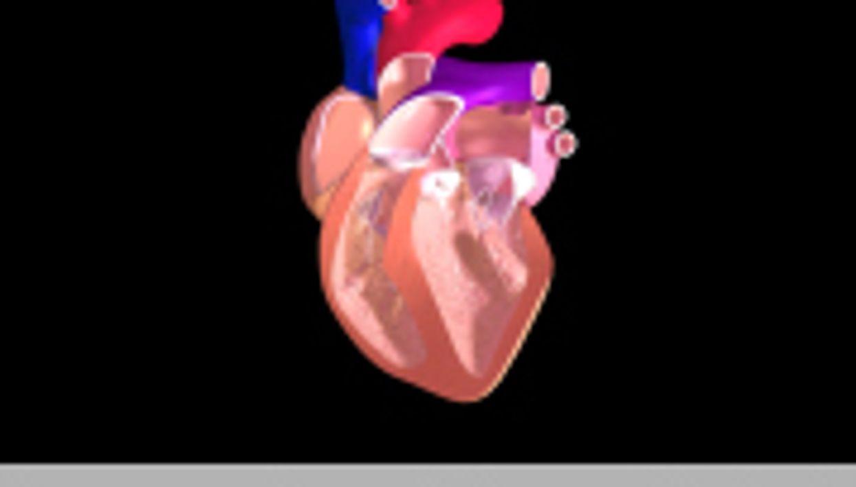 Prognosis Better for Exercise-Linked Cardiac Arrest