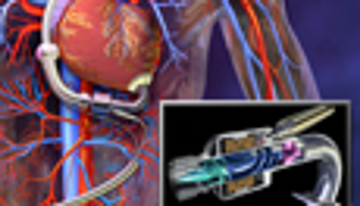 Ventricular Assist Device Beneficial in Youth Heart Failure