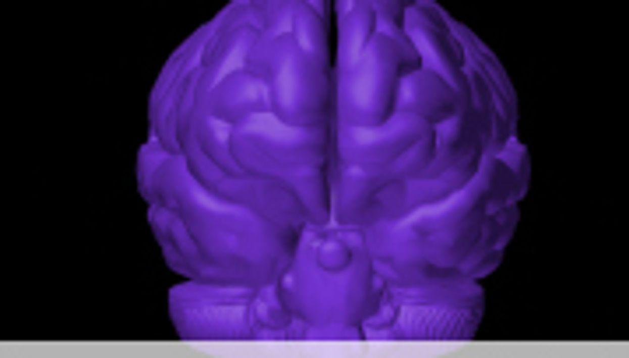 Abnormal Brain Activity Seen in Hoarding Disorder