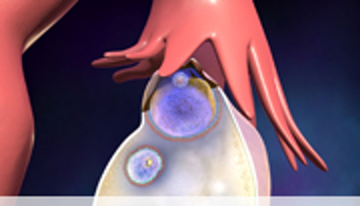 Optimal Dose Suggested for Dasatinib in Ovarian Cancer