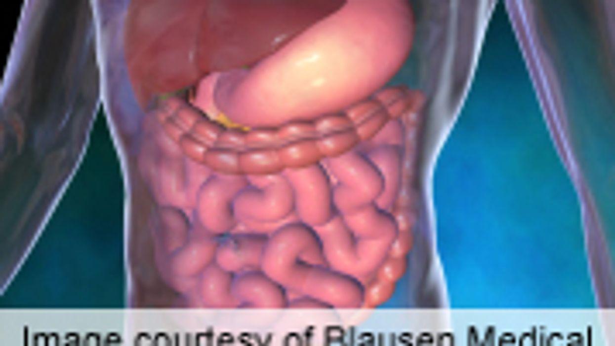 Tofacitinib Benefits Patients With Active Ulcerative Colitis