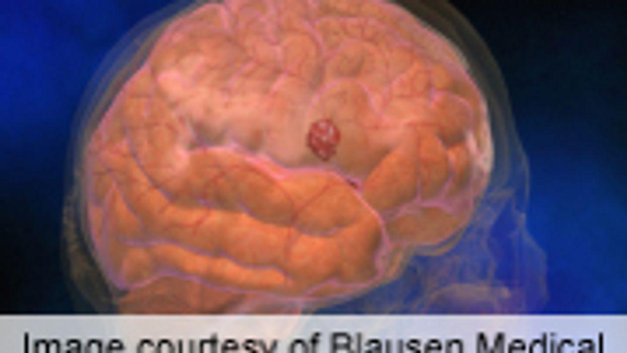 Pregnancy Ups Bleed Risk From Abnormal Brain Blood Vessels