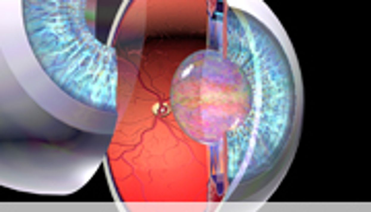 USPSTF Reviews Therapies for Open-Angle Glaucoma