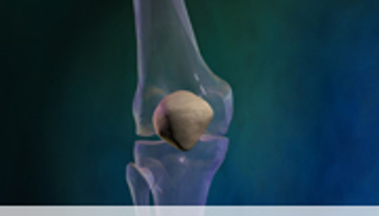 AAOS: Same-Day Double Knee Replacement Safe With RA