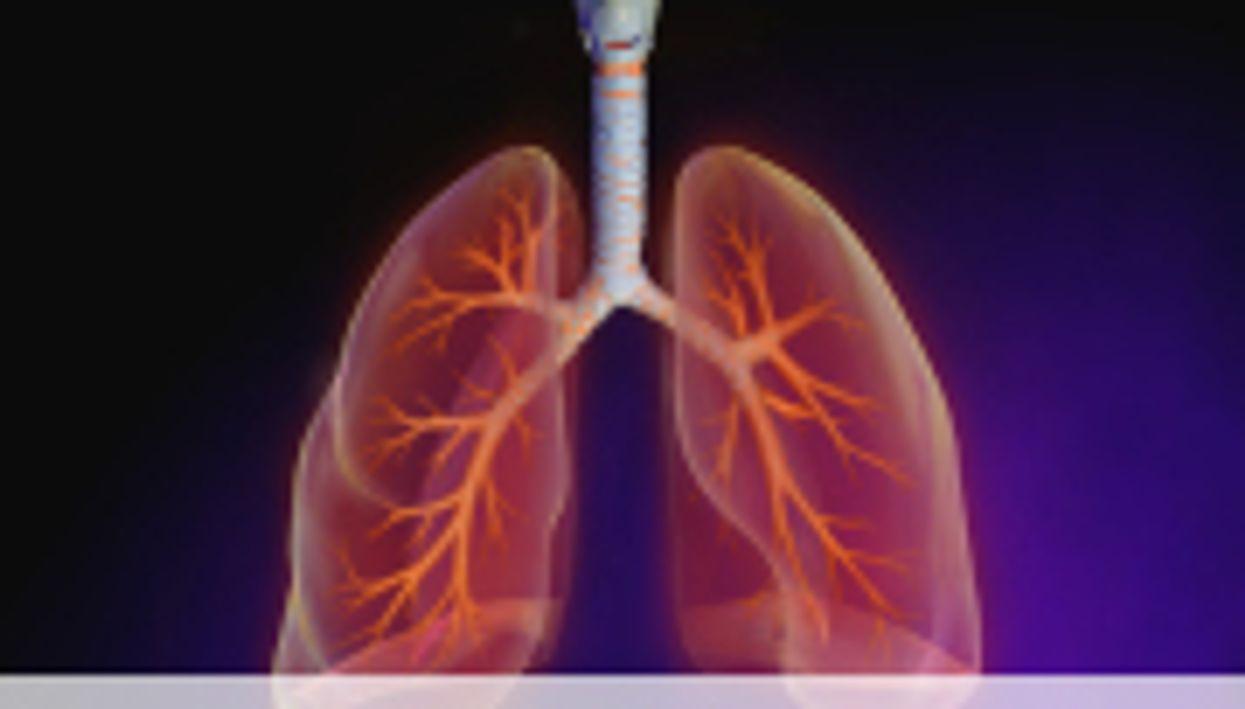 ATS: Studies Examine Tx for Idiopathic Pulmonary Fibrosis