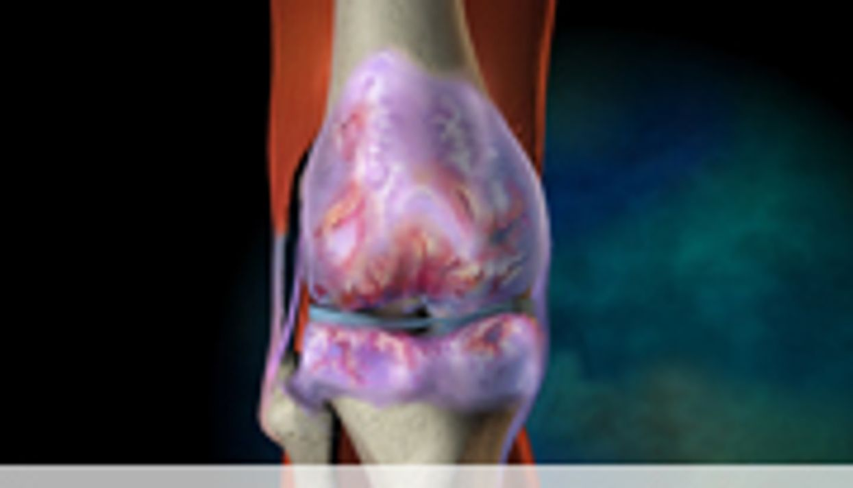 Patellofemoral Disease Features Analyzed in Osteoarthritis