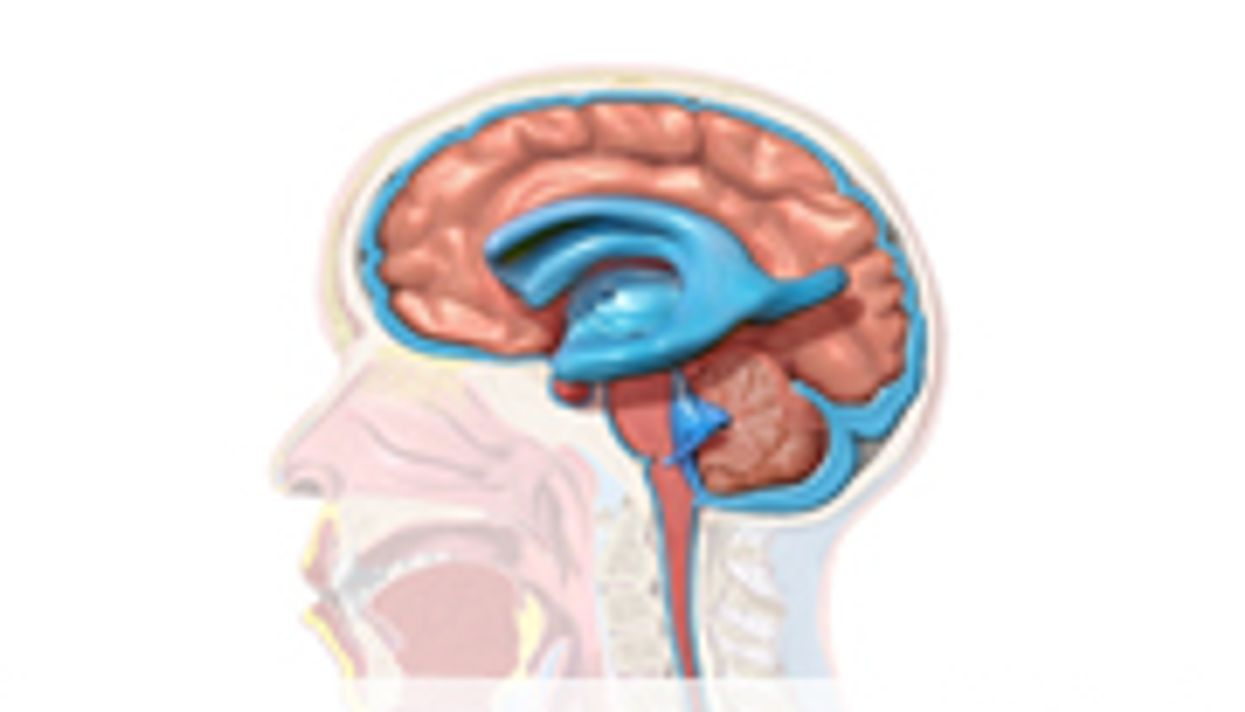 Post-Bleed Hydrocephalus Risk Up in Low-Income Preemies