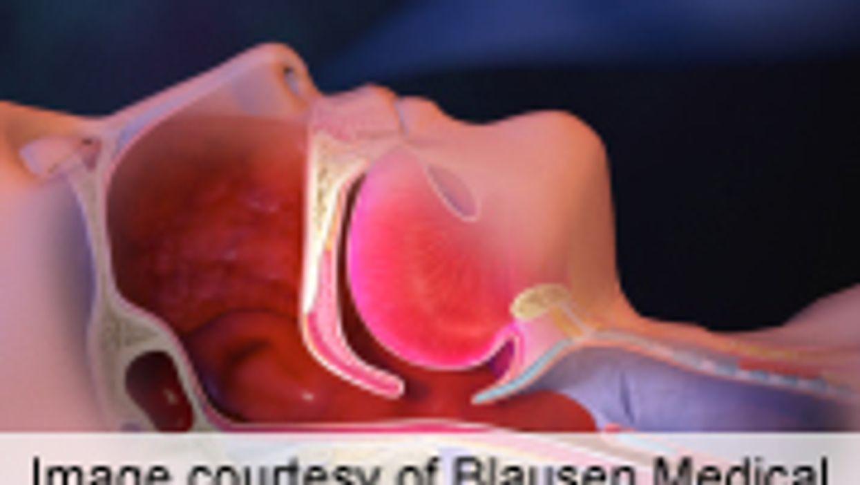 Treating Obstructive Sleep Apnea Tied to Lasting BP Drop