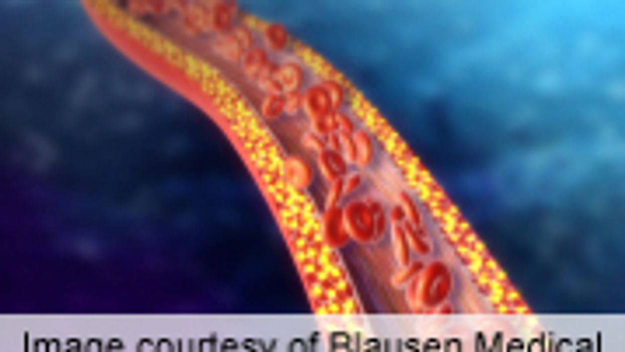 Glycocalyx Barrier Impaired in Dialysis Patients