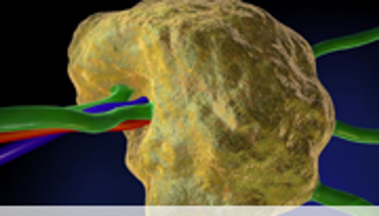 Neurocognitive Deficits Seen in Survivors of Pediatric Hodgkin's