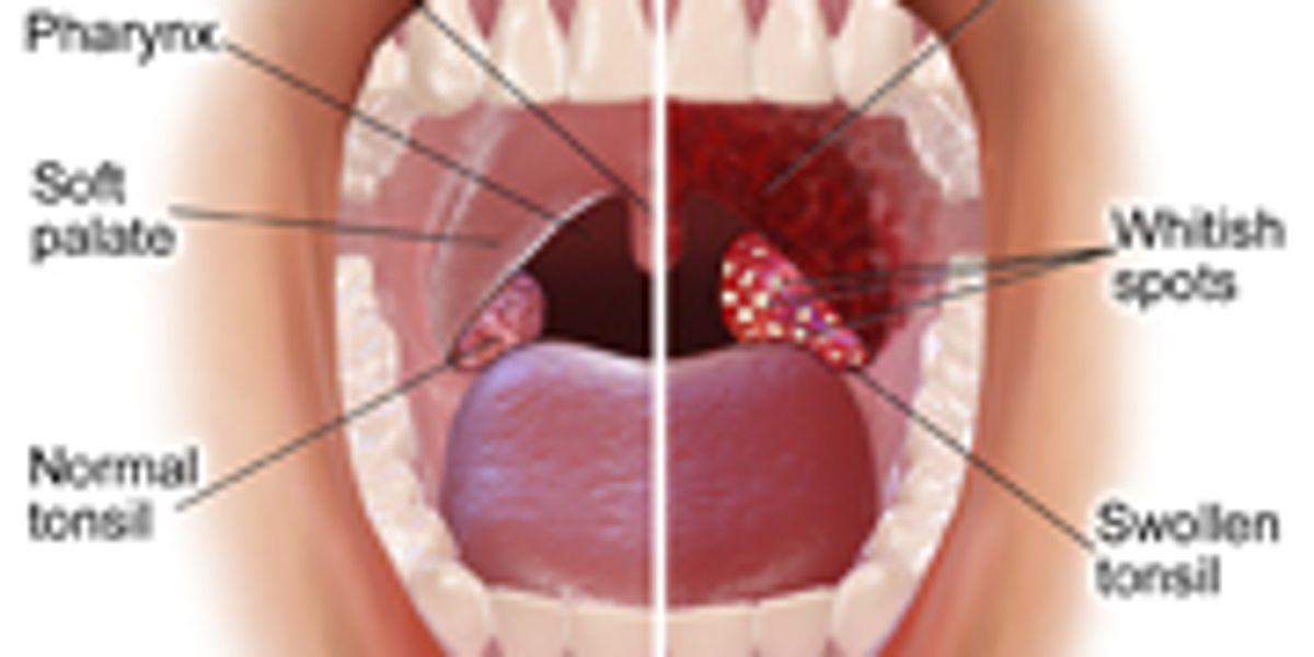 Papilloma mouth cancer, Te-ar mai putea interesa şi …