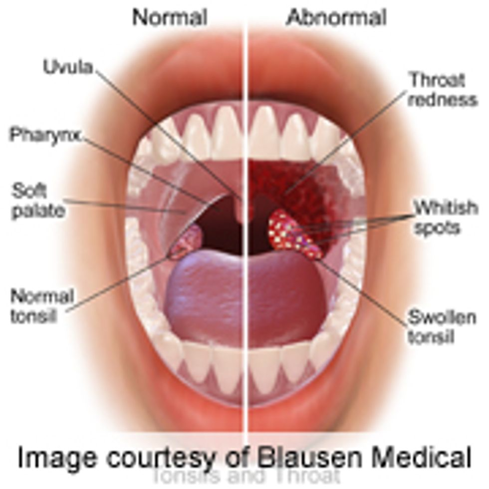 Papilloma lump in mouth, Hpv throat lump