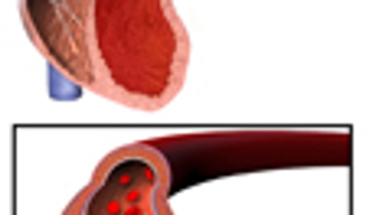 Low Diuretic Use in Home Care for Blacks With Hypertension