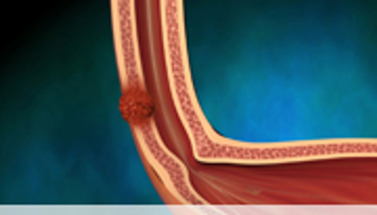 Symptoms Cluster After Esophageal Cancer Surgery
