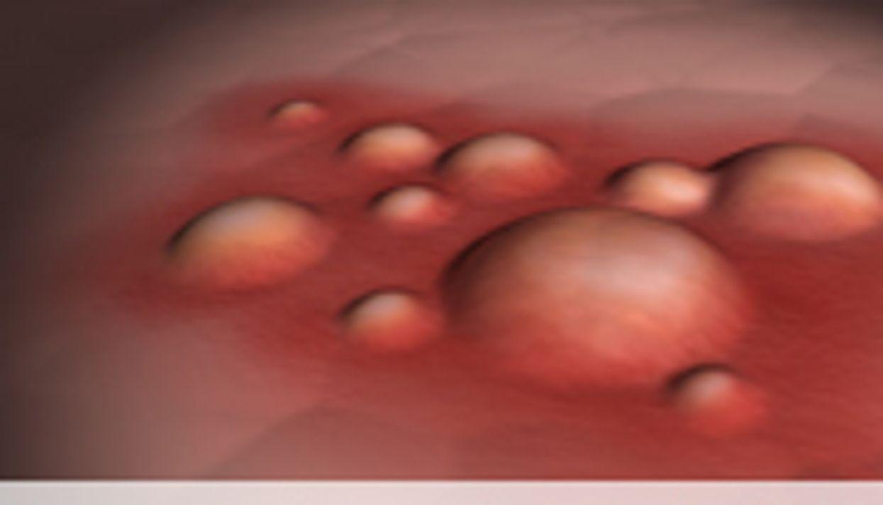 Primrose Oil  Borage Oil Not Effective Eczema Treatment