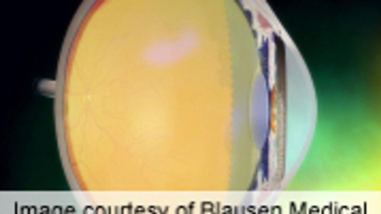 AAO: Microstent Cuts Intraocular Pressure in Glaucoma