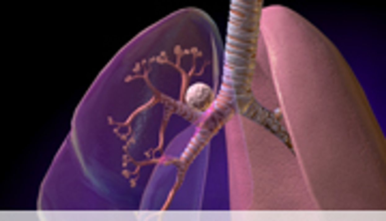 ASCO: Low-Dose CT Lung CA Screening Recs Will Up Diagnoses
