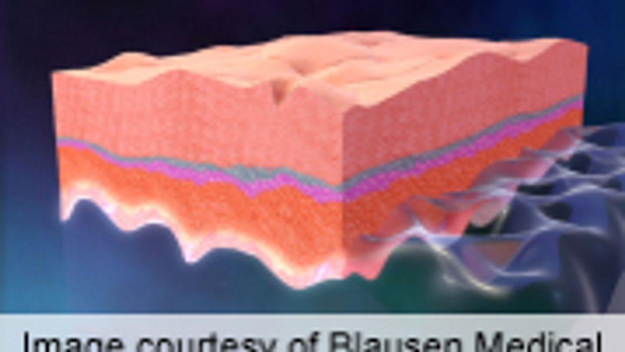 Electronic Skin Has Properties of Natural Skin