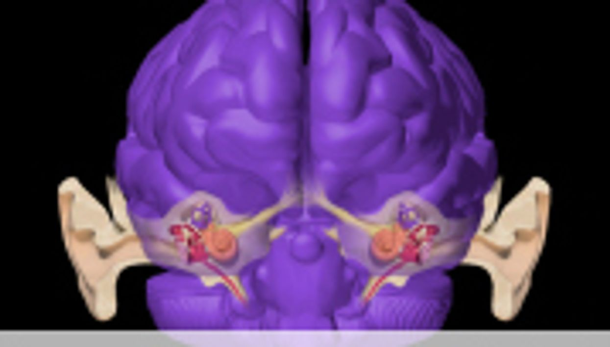 Vagal Nerve Stimulation Paired With Tones Viable for Tinnitus
