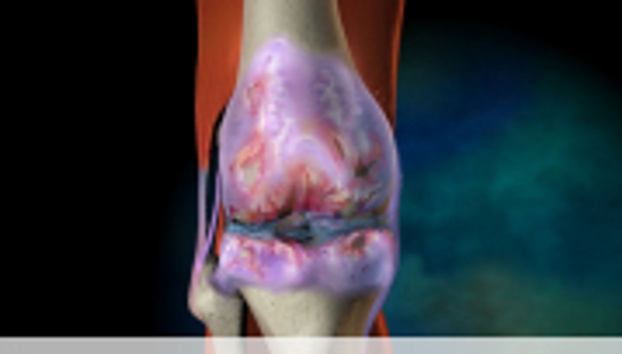 Arthritis Cartilage Shows Mitochondrial Dysfunction