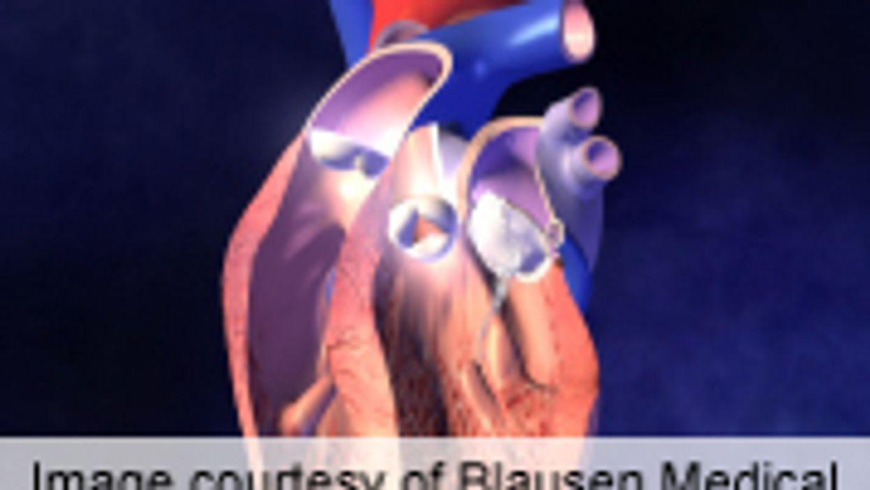 Warfarin D/C Within 180 Days Post-Surgery May Up Mortality