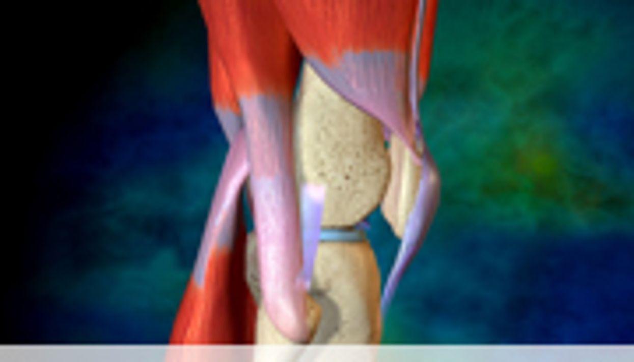 Gabapentin Doesn't Cut Use of Morphine Post-Knee Arthroplasty
