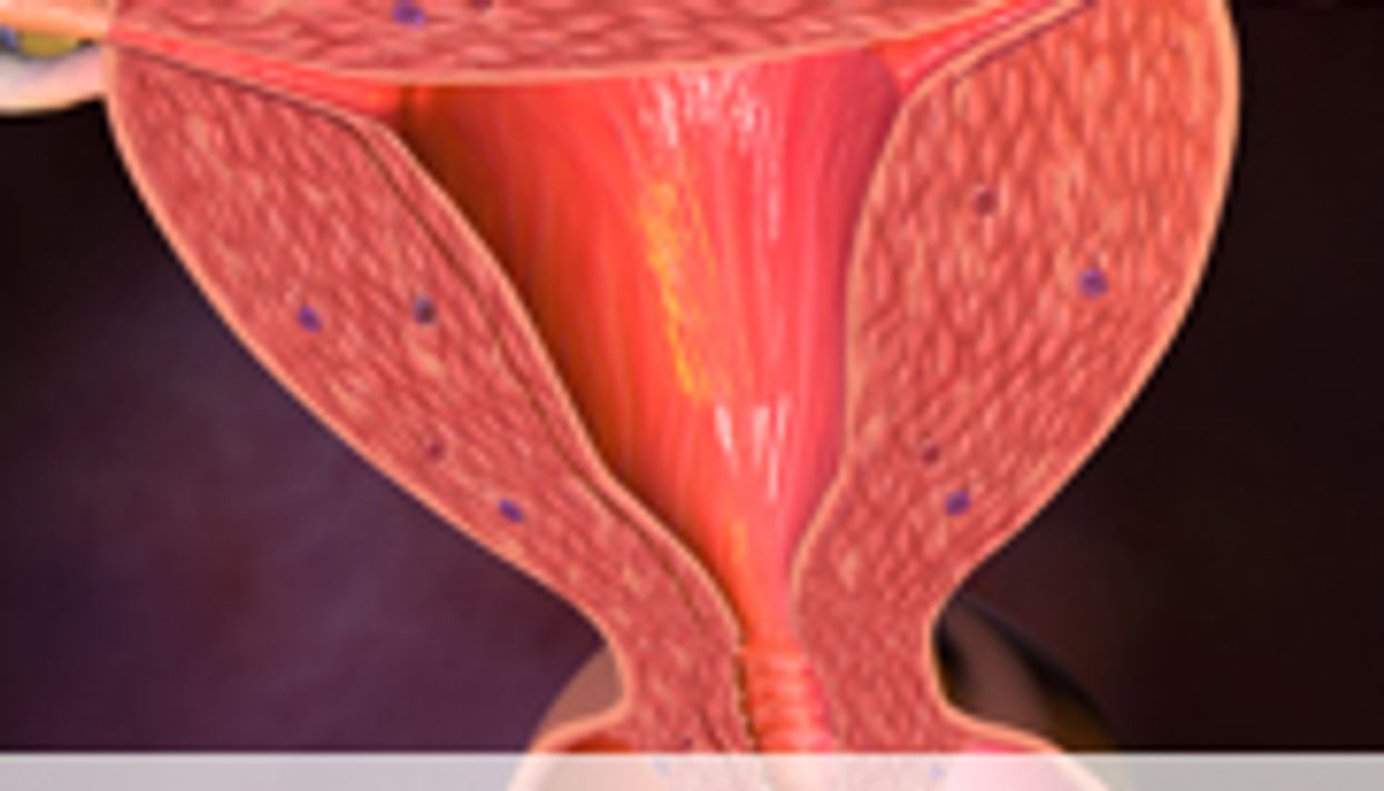 Keeping Fit May Boost Survival With Endometrial Cancer