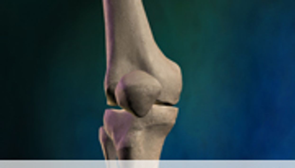 Knee Replacement Surgeries Rising With Obesity Rates